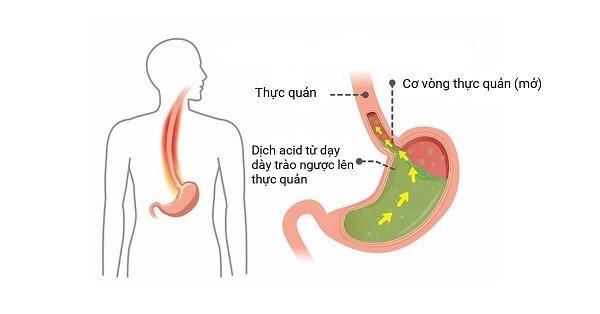 Triệu chứng thường gặp nhất của trào ngược dạ dày là ợ chua, nóng rát cổ họng
