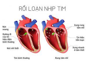 Rối loạn nhịp tim trở nên nguy hiểm khi không được phát hiện và điều trị sớm