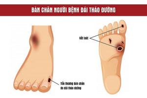 Biến chứng tiểu đường gây ra các tổn thương nguy hại trên bàn chân người bệnh