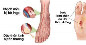 Các dấu hiệu ban đầu của biến chứng tiểu đường phát triển thành tình trạng loét bàn chân