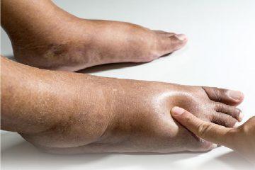 Hình ảnh bàn chân bị phù do suy tim