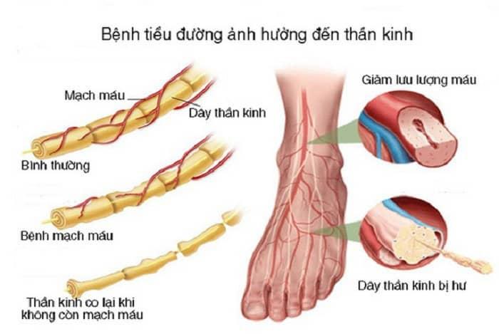Hình ảnh mô tả tổn thương thần kinh do đái tháo đường (tiểu đường)