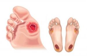 Hình ảnh bàn chân tiểu đường bị loét