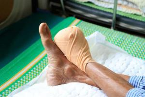 Điều trị loét bàn chân tiểu đường càng sớm, nguy cơ phải cắt cụt chi càng giảm