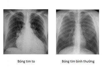 Hình ảnh bóng tim to trên X quang ngực là dấu hiệu của bệnh tim mạch