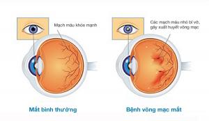 Hình ảnh tổn thương mạch máu trong bệnh võng mạc đái tháo đường