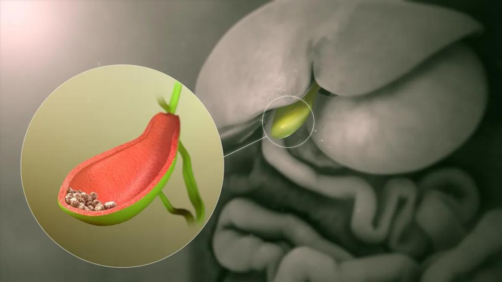 Nhiều người bệnh băn khoăn sỏi túi mật uống thuốc gì giảm đau nhanh, tan sỏi