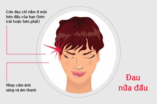 Cơn đau nửa đầu và những điều bạn nên biết để phòng tránh