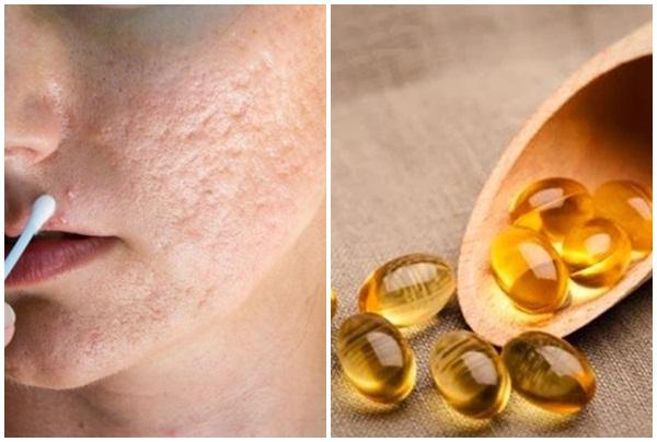 Vitamin E có tác dụng trong làm mờ sẹo rỗ