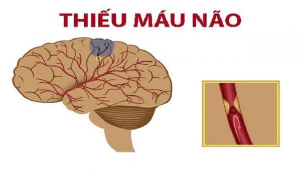 Bệnh thiếu máu não có điều trị được bằng thuốc nam