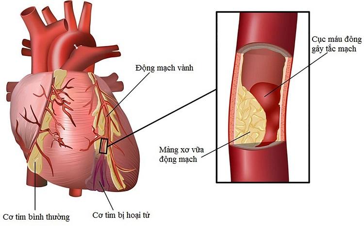 Thiếu máu cơ tim nếu không phát hiện và điều trị sớm sẽ trở nên nghiêm trọng