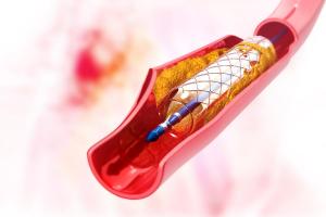 Đặt stent mạch vành được bao lâu phụ thuộc vào chế độ chăm sóc của người bệnh