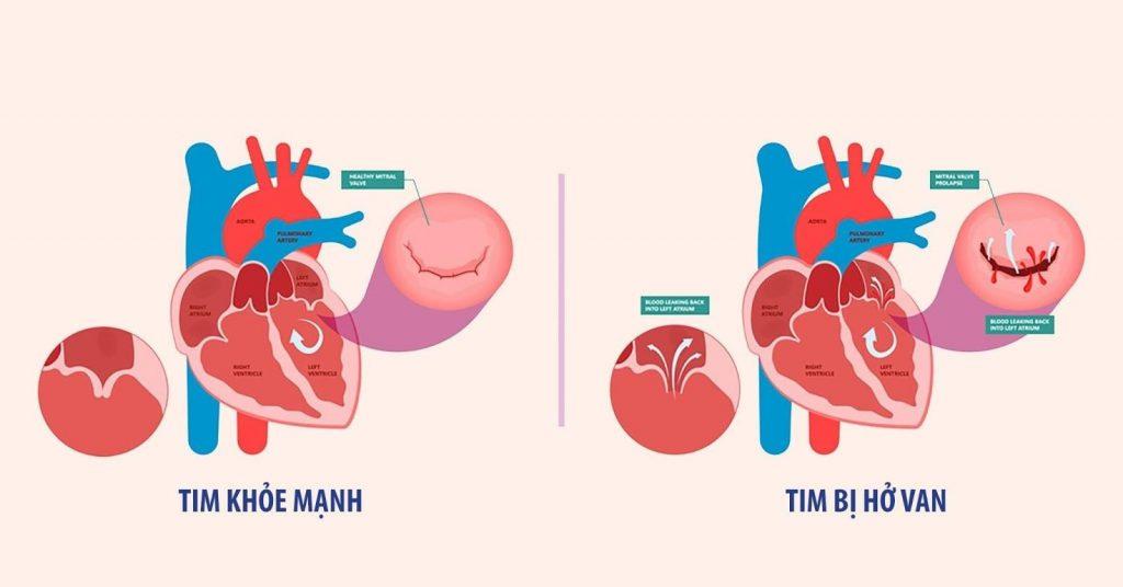 Điều trị đúng cách sẽ giúp người bệnh hở van tim tăng chất lượng cuộc sống, tuổi thọ