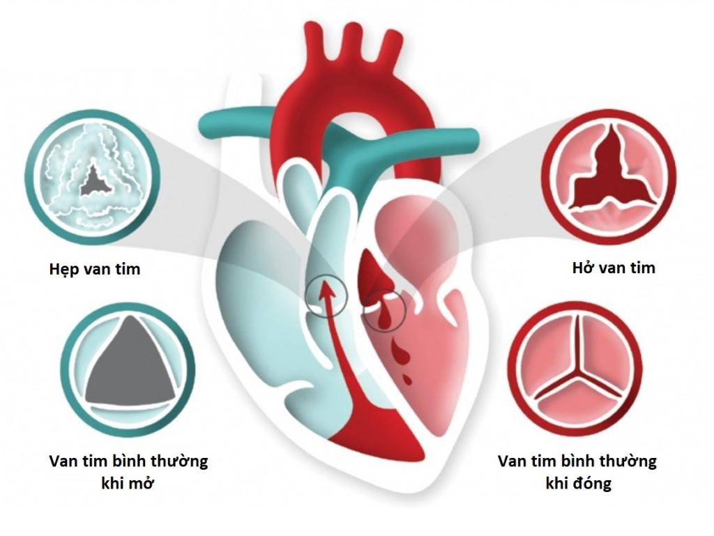 Nhiều người bệnh băn khoăn hở van tim có chữa được không