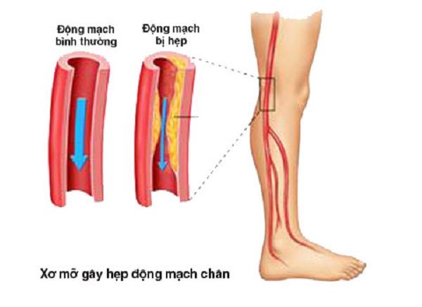 Tổn thương mạch máu, dây thần kinh là nguyên nhân thường gặp của loét tiểu đường