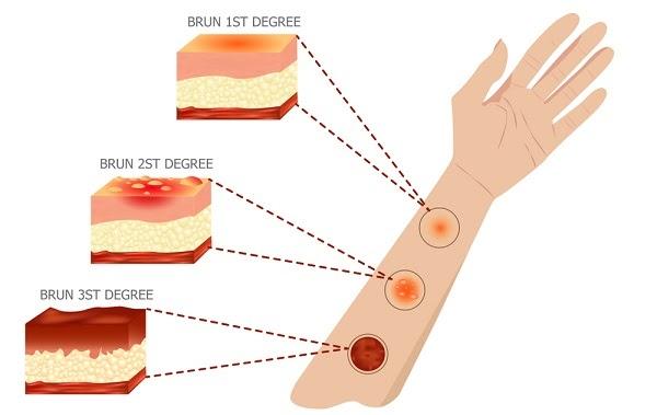 Xác định đúng mức độ bỏng giúp quá trình điều trị đạt hiệu quả tối ưu
