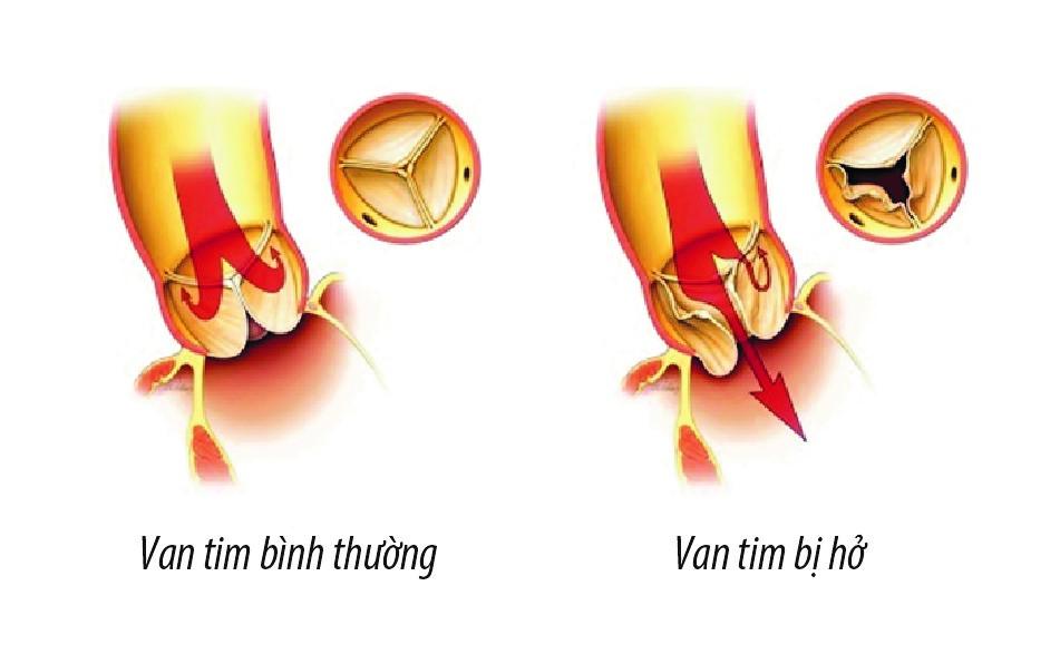 Người bị hở van tim nặng thường có tuổi thọ ngắn hơn người bị hở van tim nhẹ