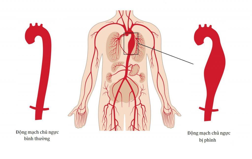 Tăng huyết áp có thể gây phình động mạch chủ đe dọa tính mạng