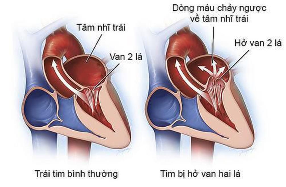 Hở van 2 lá 1/4 là mức độ hở van tim 2 lá nhẹ