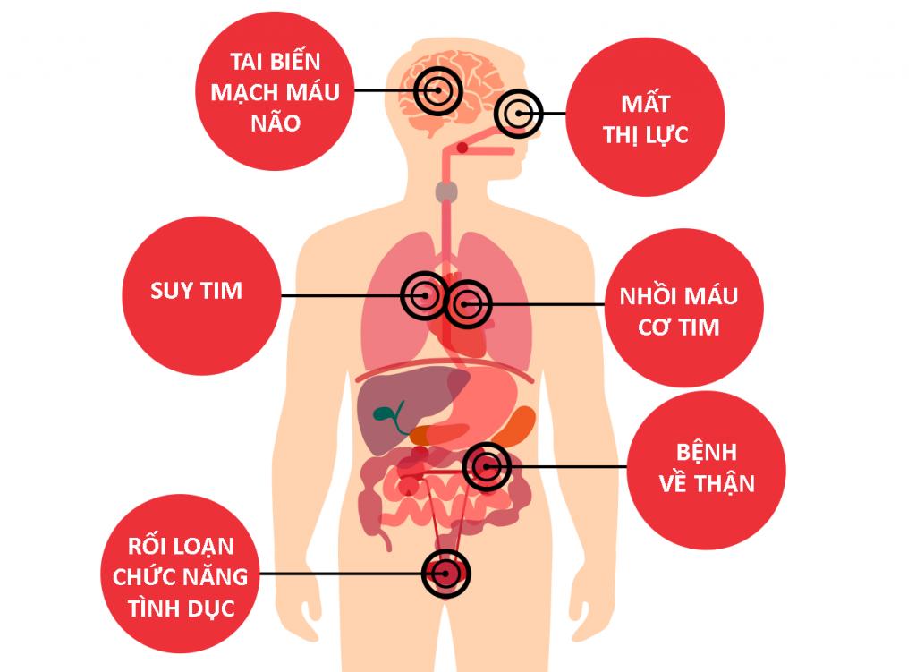 Biến chứng cao huyết áp gây tổn hại khắp cơ thể