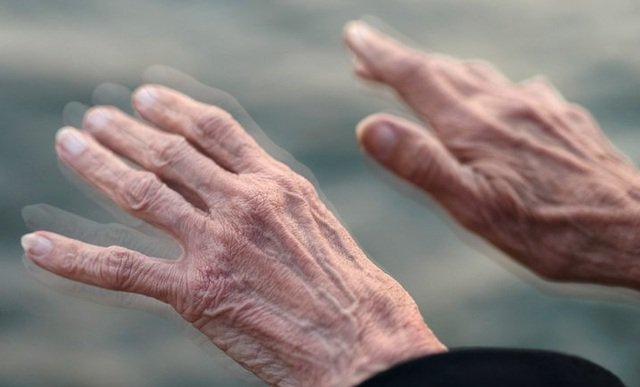 Người già là nhóm đối tượng thường mắc run tay chân nhất