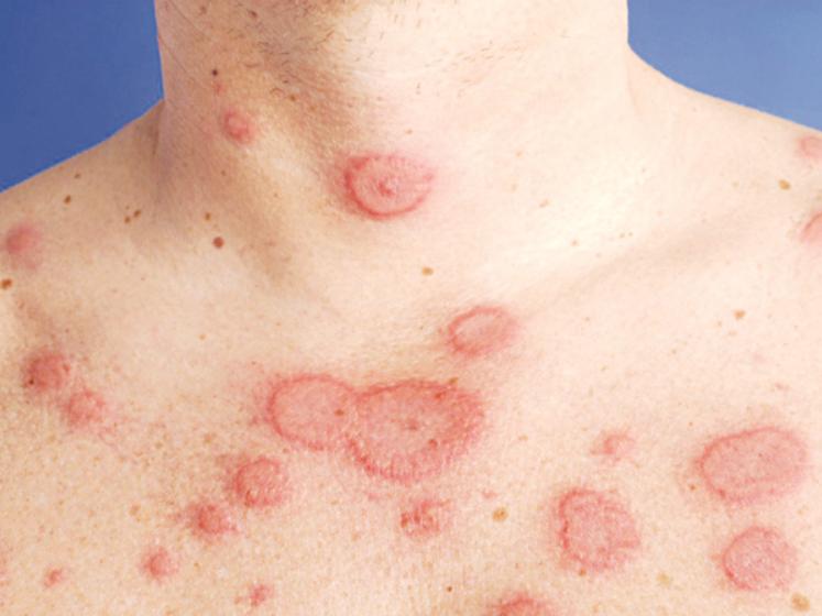 Lupus ban đỏ dạng đĩa