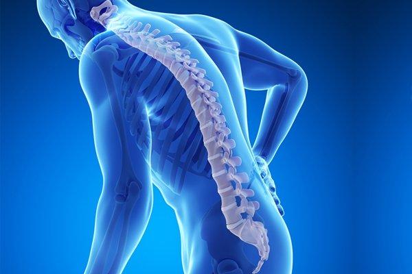 Nguy cơ loãng xương ở người bệnh lupus ban đỏ
