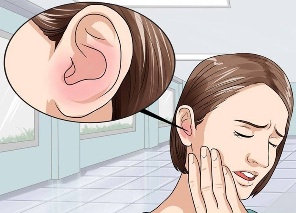 Phương pháp tây y trị ù tai