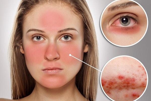 Lupus ban đỏ có nguy hiểm không?
