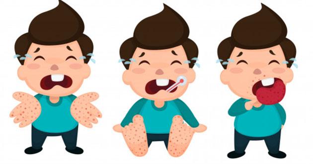 Cần làm gì để phòng tránh chân tay miệng?