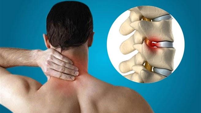 Thoát vị đĩa đệm cổ có thể gây ra những cơn đau vùng cổ - vai - gáy
