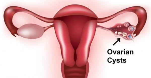 Bệnh u nang buồng trứng có nguy hiểm không?