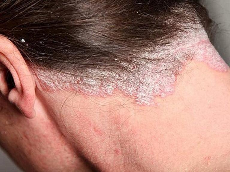Biểu hiện khi mắc vảy nến da đầu
