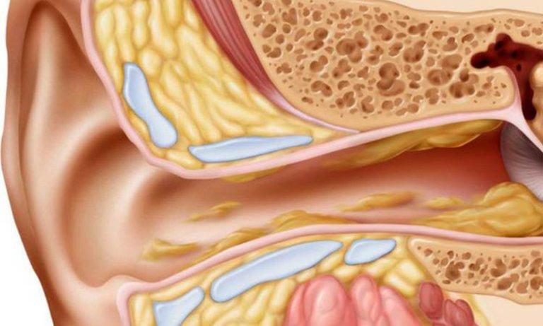 Điều trị triệu chứng nghe tiếng ve kêu trong tai