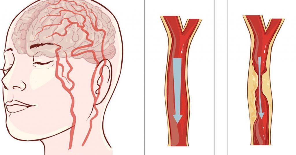 Tai biến mạch máu não có nguy hiểm không?