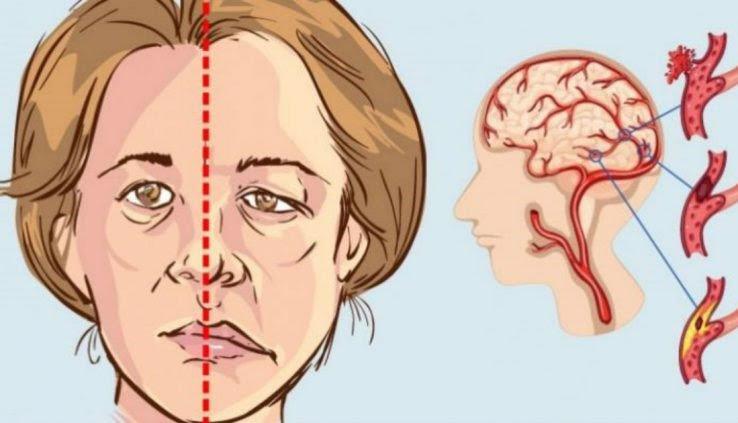 Các dấu hiệu tai biến mạch máu não