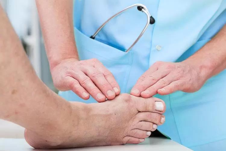 Điều trị bệnh gút cần tập trung kiểm soát triệu chứng và phòng ngừa tái phát