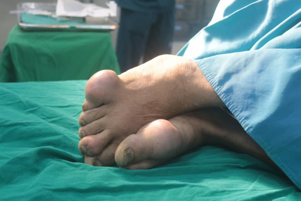 Biến dạng bàn chân do mắc gout